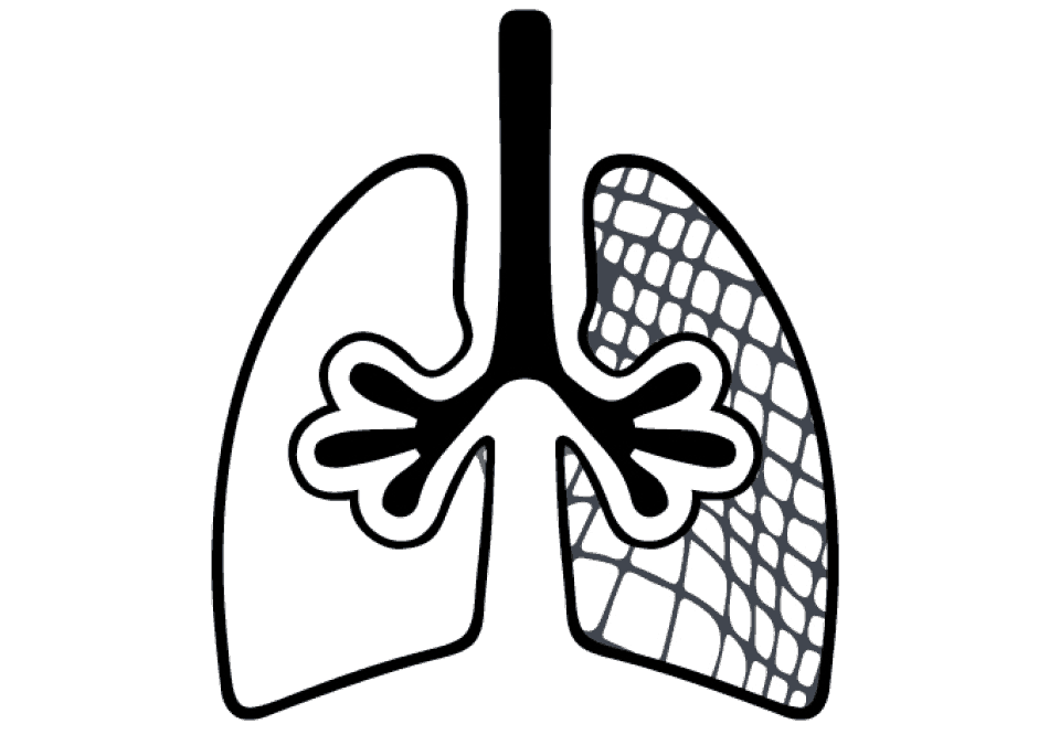 Chronic Obstructive Pulmonary Disease, COPD lung function