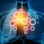 Influenza and airway mechanics